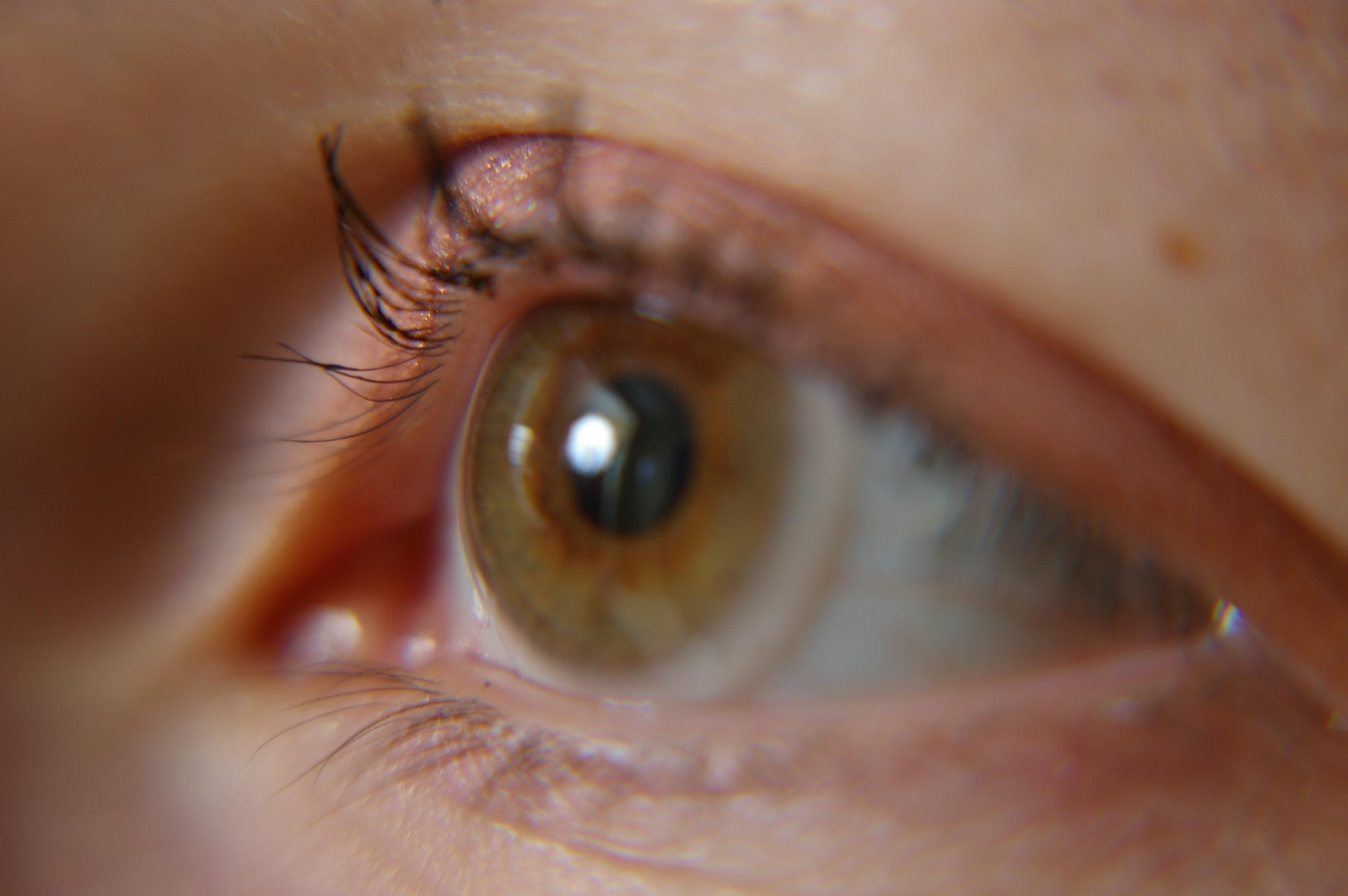 Ludzie oko jest poddatne na zagrożenia promieniowaniem!